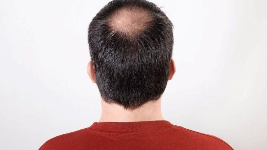 Trapianto capelli in Italia: come funziona e dove farlo